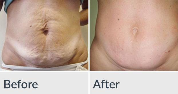 Velashape Fat Cellulite Reduction Genesis Medspa Jefferson City Missouri
