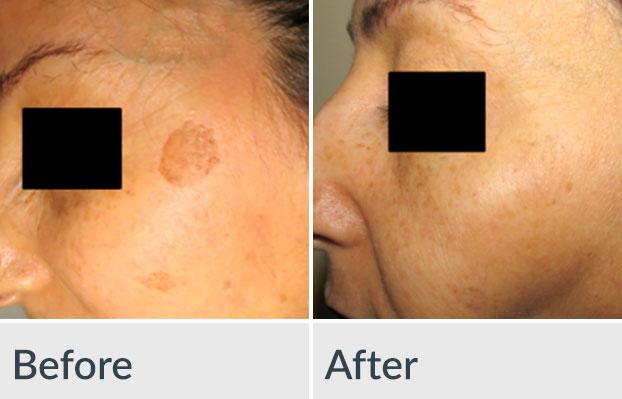 ellicott city facial rejuvenation