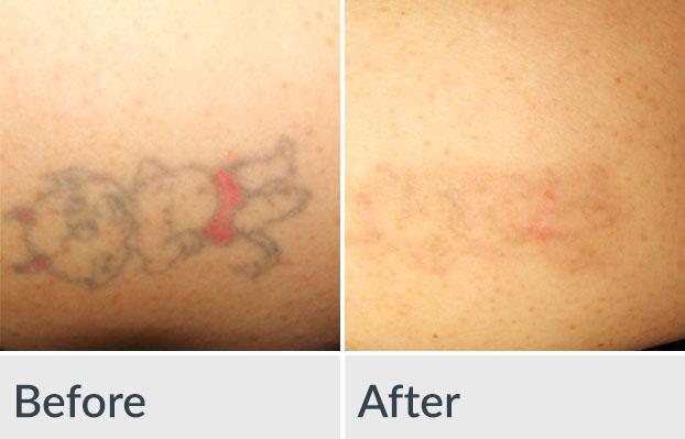Laser Tattoo Removal | Genesis Medspa - Jefferson City, Missouri
