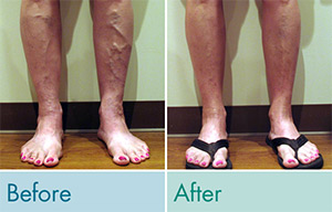 JCMG Laser & Vein Center client before and after photo.